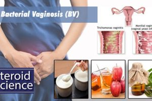 Bacterial vaginosis - Treatment, Syptoms, Causes - Steroid Science